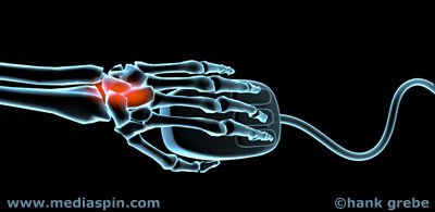 X-ray version of carpal tunnel pain